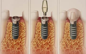 implant_1